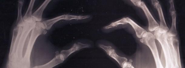 Huesos impresos en 3D: son reales y permiten solucionar fracturas