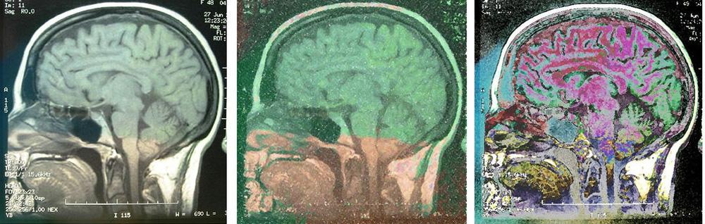 Nueva técnica de escaneo cerebral permite representar tus pensamientos