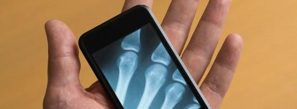 Aplicaciones móviles en medicina, ¿mejoran nuestra salud o dañan nuestra privacidad?