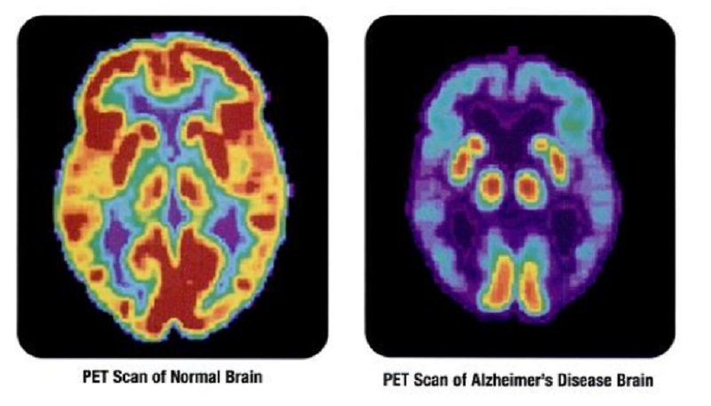 Avances en el diagnóstico precoz del Alzheimer