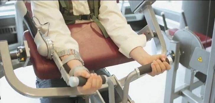 Crean un brazo de titanio para prevenir dolores de espalda