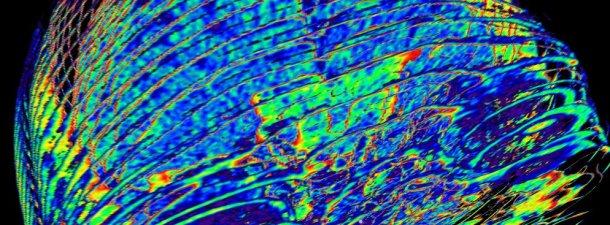 Científicos del MIT descifran las autopistas de información que circulan por tu cerebro