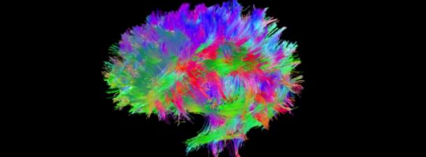 Marc Ramos nos cuenta su experiencia Talentum en el desarrollo de mapas cerebrales 3D
