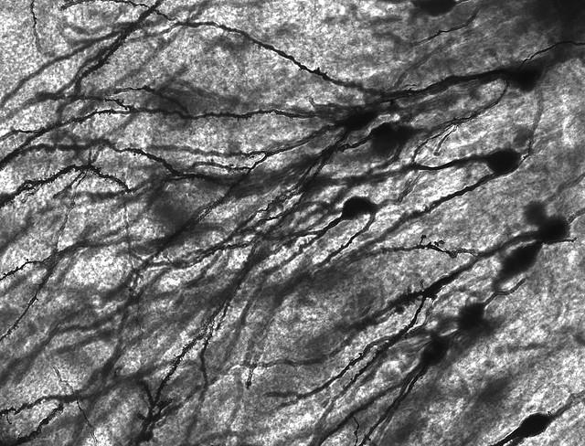 Logran frenar el deterioro del Aparato de Golgi, relacionado con el desarrollo del Alzhéimer
