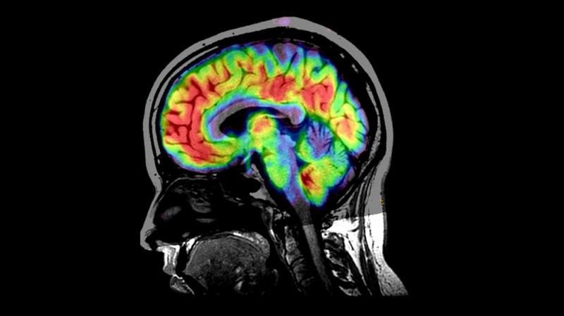 Nuestro cerebro puede curarse a sí mismo gracias a estos implantes biodegradables