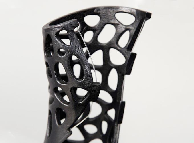 Escayola 3D con ultrasonidos para una recuperación mucho más rápida