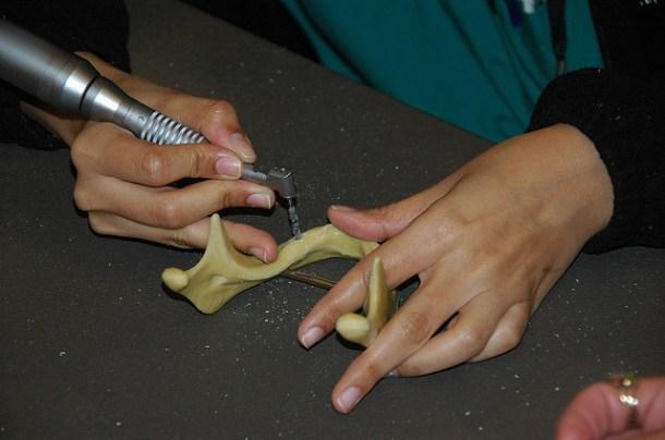 Implantes médicos impresos en 3D
