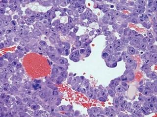 diagnostico del ebola