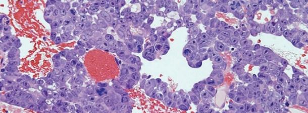 El diagnóstico del ébola por menos de un euro con esta tira de papel
