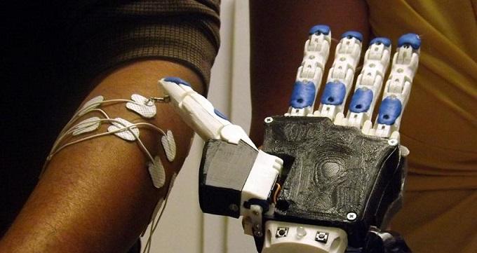 Una mano artificial impresa en 3D destinada a países en desarrollo