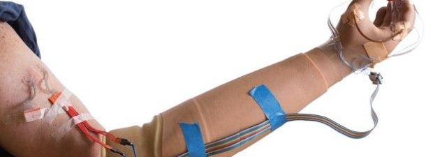 Logran implantar una mano biónica con sentido del tacto