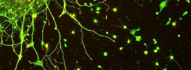 Electrodos desde tu smartphone para estimular el cerebro
