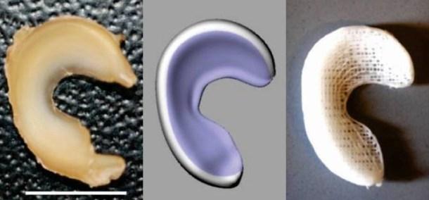 implante fabricado con impresión 3D