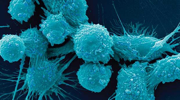 Estas minúsculas manos robóticas podrían atrapar fácilmente las células cancerosas