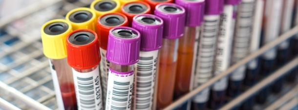 Olvídate de los grupos sanguíneos: así será el futuro de la donación de sangre