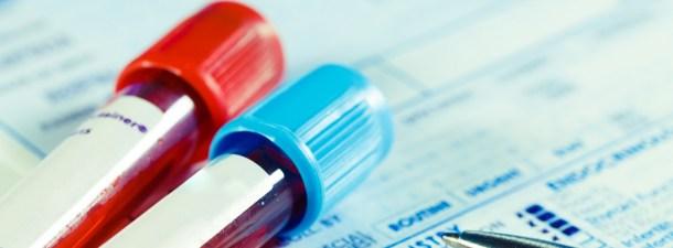 Personalizar los tratamientos contra el cáncer, el objetivo de la biopsia líquida