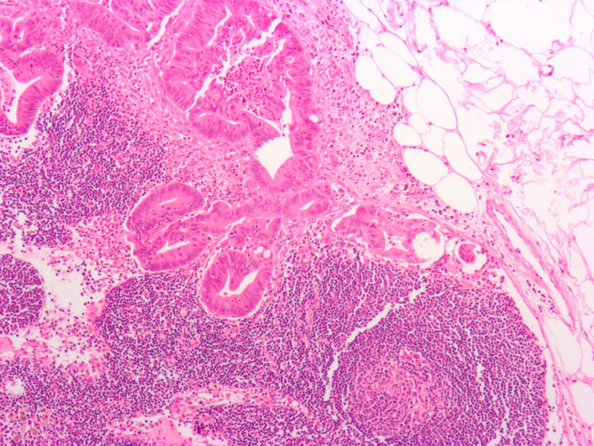 Científicos identifican una nueva diana terapéutica contra el cáncer colorrectal