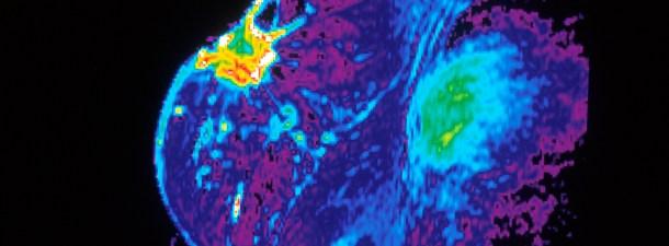 Nanomedicina contra el cáncer de mama y colon