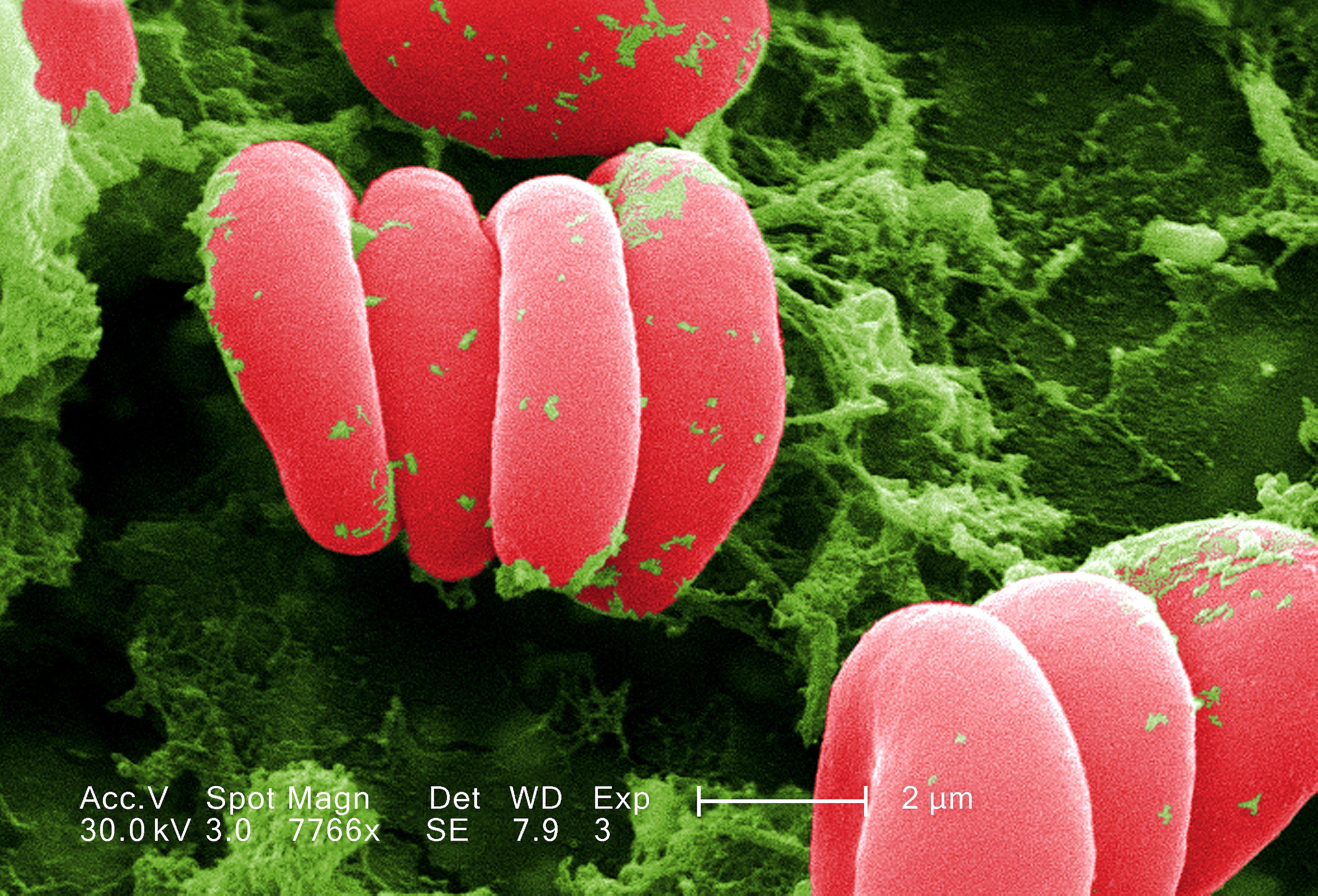 Un test para detectar la anemia basado en la impresión 3D