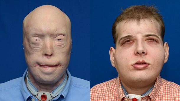 trasplante de cara