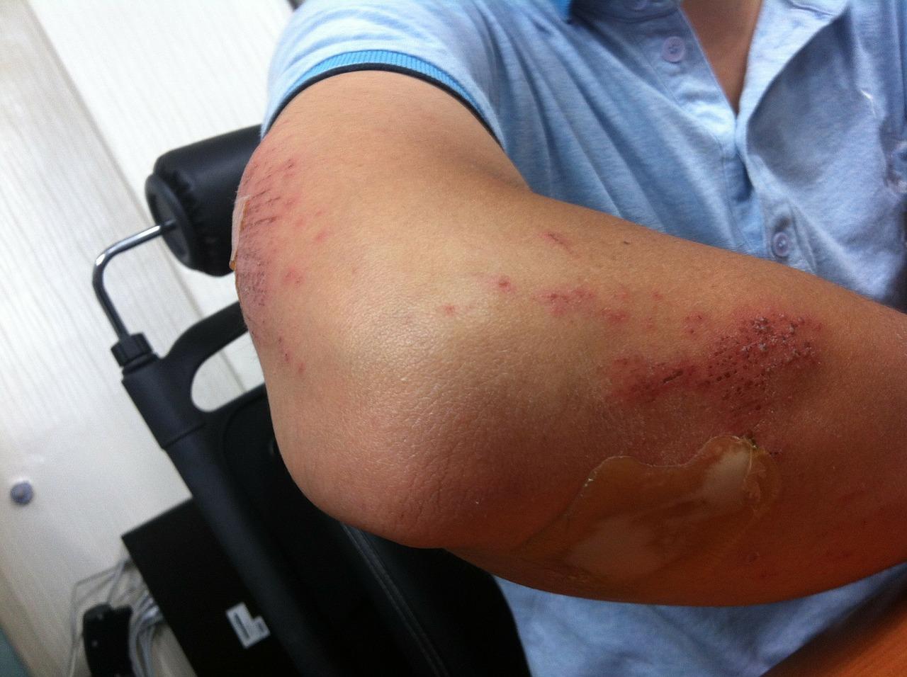 Un vendaje inteligente que detecta posibles infecciones de las heridas