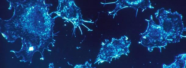 Un biosensor para detectar el cáncer a través de la saliva