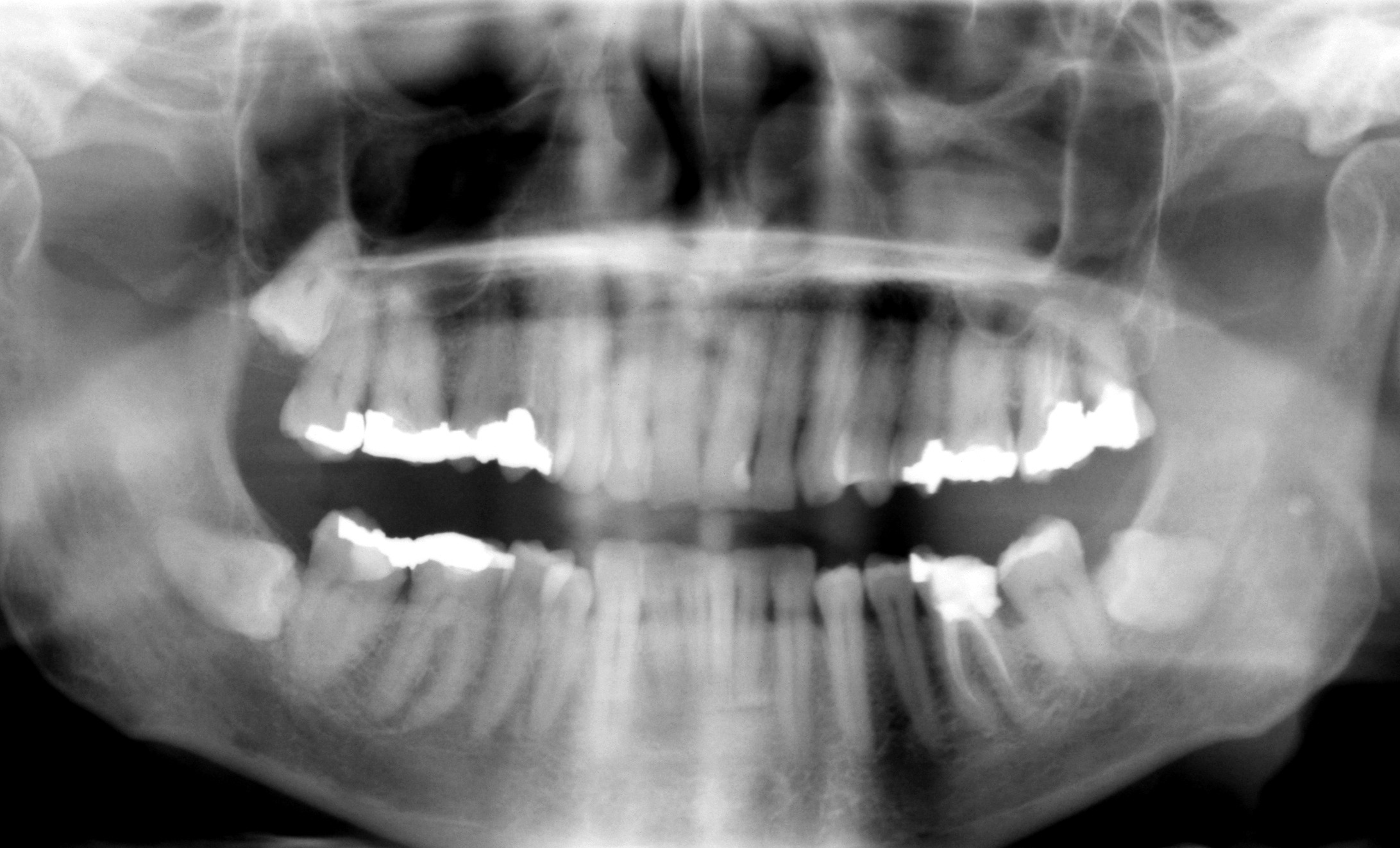 El uso de células madre en la dentadura puede acabar con las endodoncias