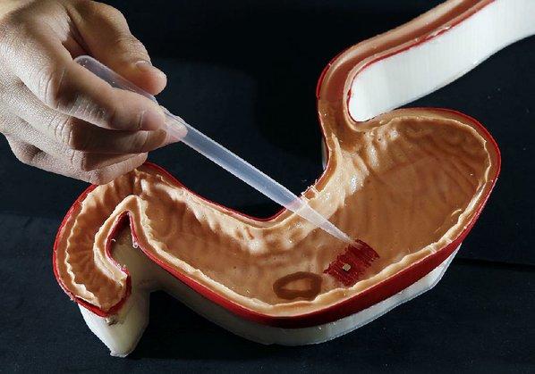 Robots comestibles para curar heridas en el estómago