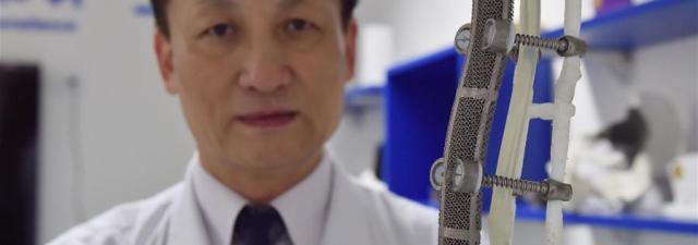 La impresión 3D ayuda a reemplazar 19 cm de vértebras de un paciente chino
