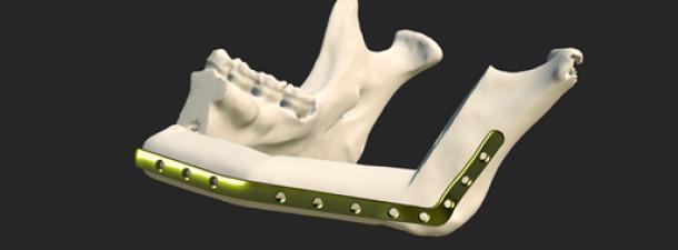 Osteophoenix, salud a medida en 3D