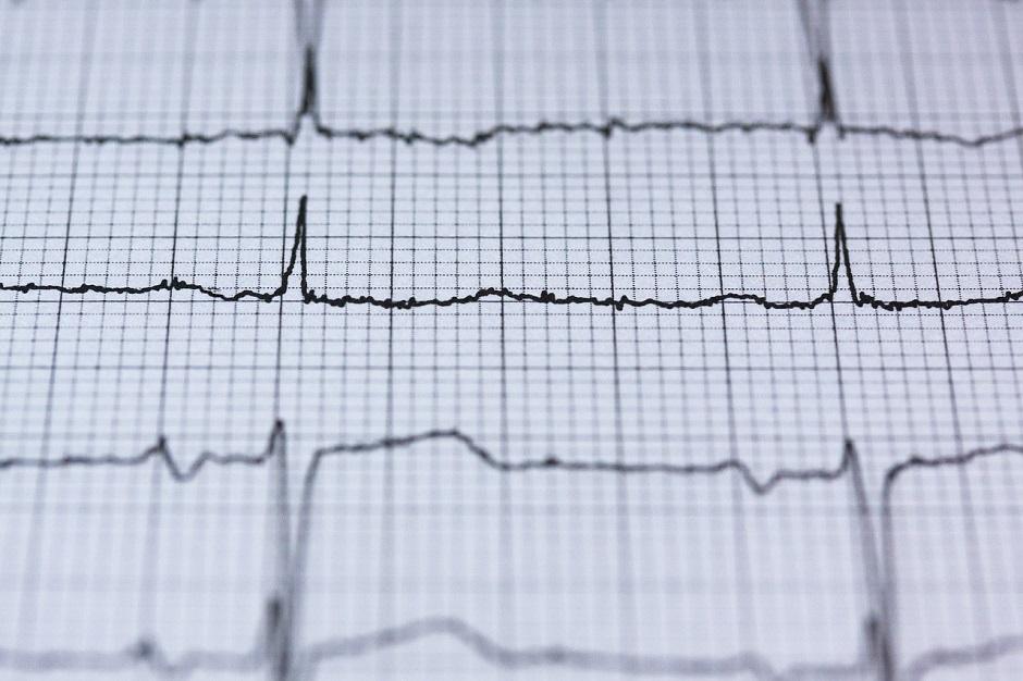 Desbloquear el ordenador con los latidos del corazón, ¿es posible?