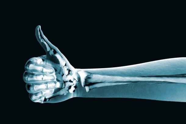 partícula de Dios en radiografías