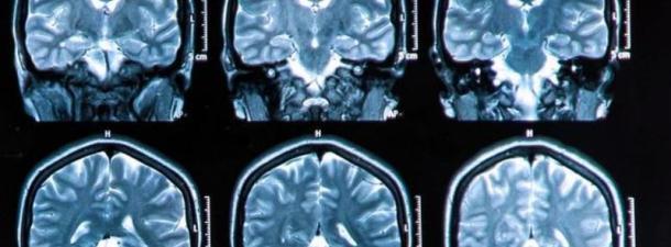 Escanear el cerebro 1.000 veces más rápido ya es posible