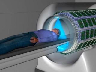 escaner explorer cuerpo entero