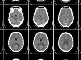 cerebro radiografía