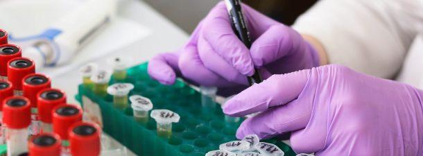 Una nueva terapia personalizada para el cáncer de páncreas metastásico