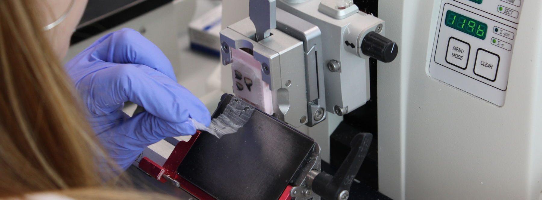 Quirón Salud y Telefónica lanzan la mayor digitalización de anatomía patológica de Europa