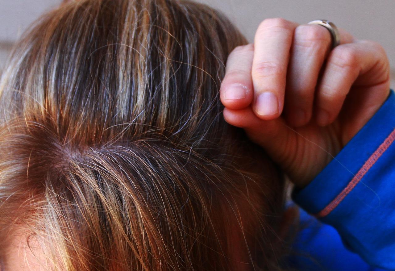 Sufrir demasiado estrés puede dar lugar a la aparición de canas