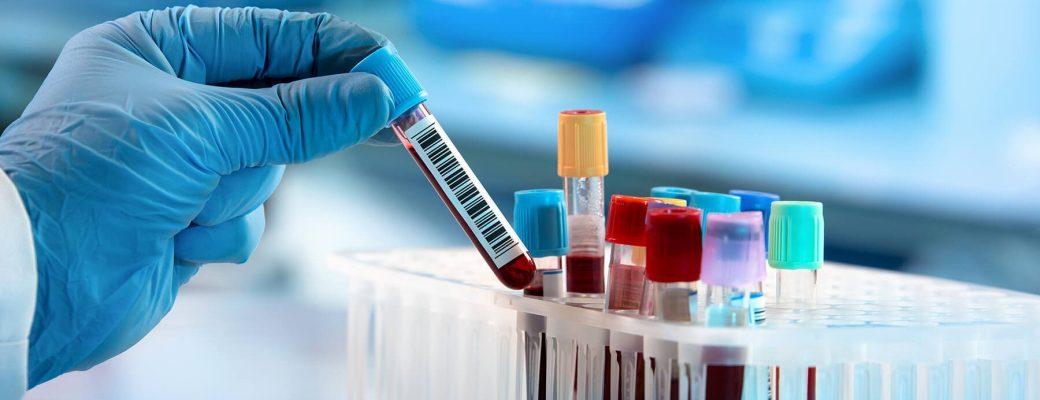 Test serológico contra el coronavirus
