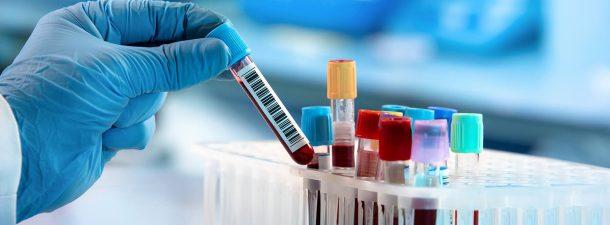 ¿Cómo funcionan los test serológicos para combatir el coronavirus?