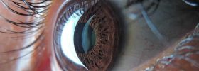 Diagnóstico oftalmológico en tiempo real por 5G utilizando tecnología de la Fórmula 1