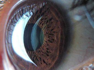 Ojo artificial, enfermedades oculares