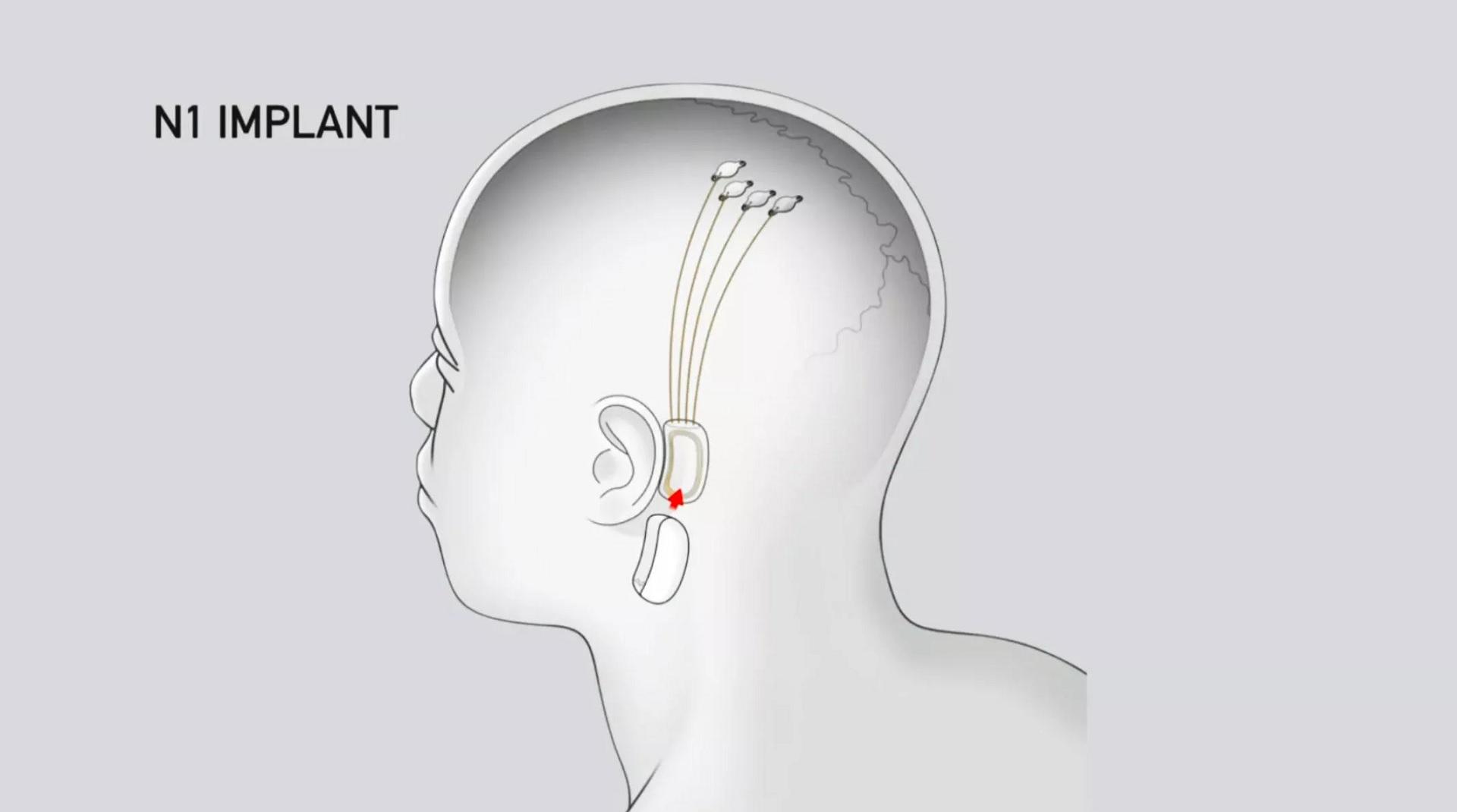 Qué se puede esperar de los primeros ensayos de Neuralink