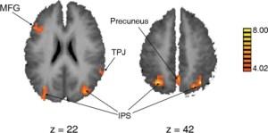 Regiones cerebrales activadas en presencia del elemento distractor (izquierda) y en ausencia (derecha) - (Kelley & Yantis, Front Hum Neurosci. 2010; 4: 216)