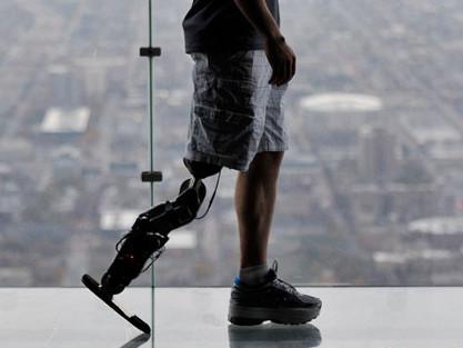 Reto superado: subir un rascacielos con una pierna biónica
