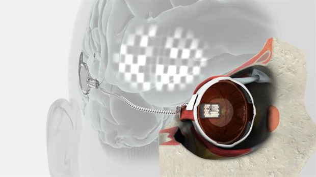 Un implante biónico devuelve la visión